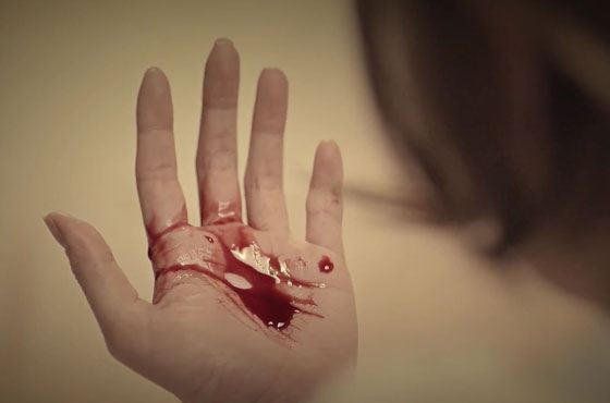 Почему он блюет кровью
