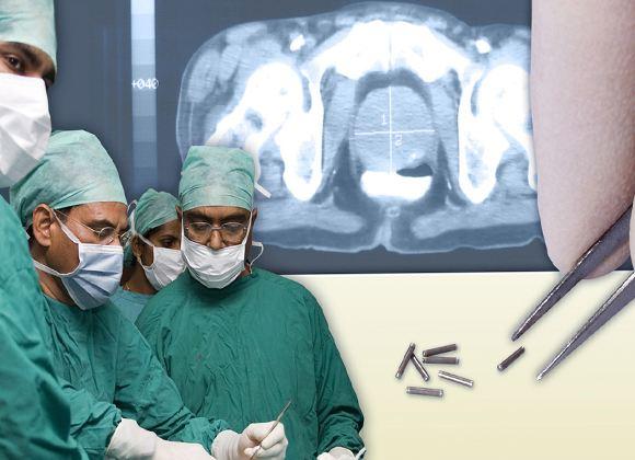 Брахитерапия предусматривает точечное воздействие на опухоль и не затрагивает другие внутренние органы