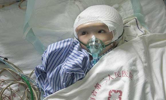 Трехлетнему ребенку пересадили череп, распечатанный на 3D-принтере
