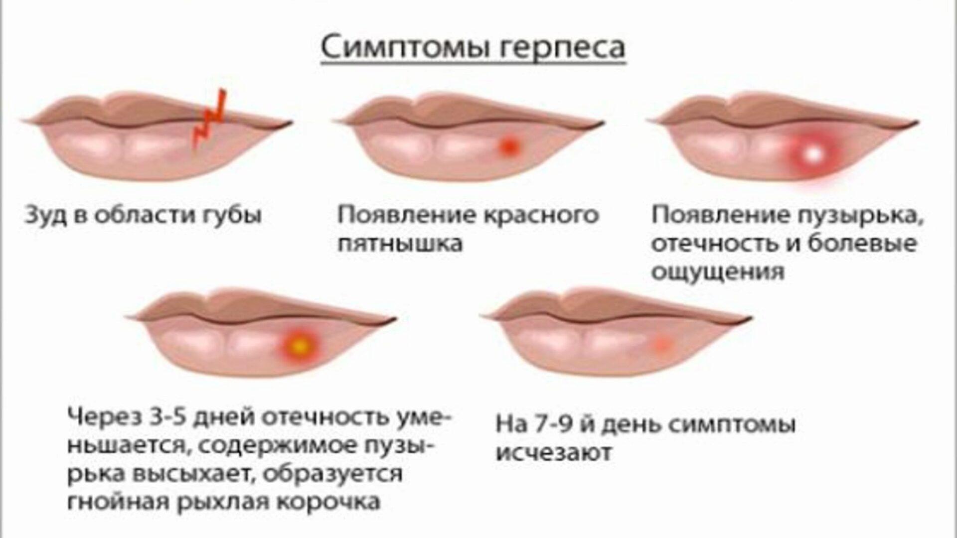 Водяной пузырь на губе что делать