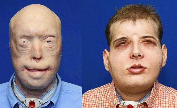 В США обгоревшему пожарному пересадил новое лицо