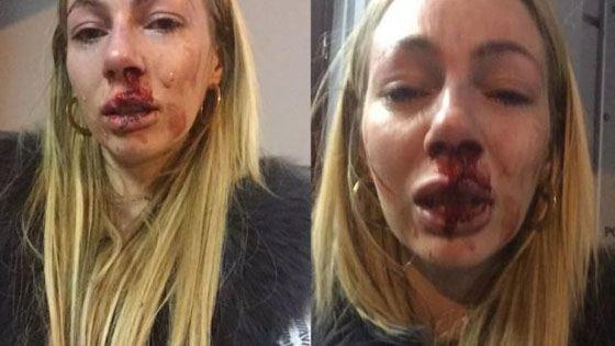 Юлия Зеленская после избиения