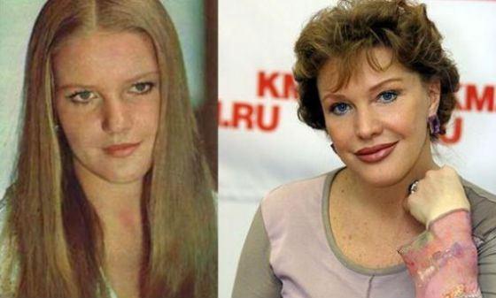 Елена Проклова несколько раз корректировала внешность