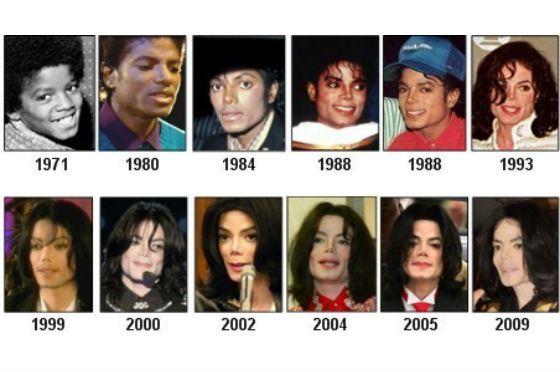Майкл джексон цвет кожи причины