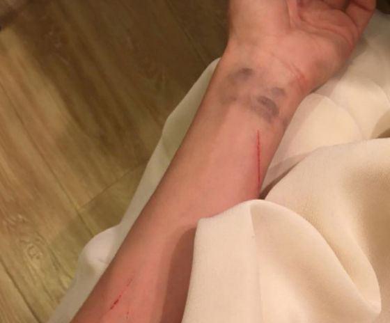 Травма Кристины Асмус носит сугубо профессиональный характер