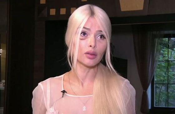 Алена Кравец после избиения