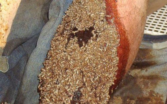 Странный метод: опарышами лечат раны